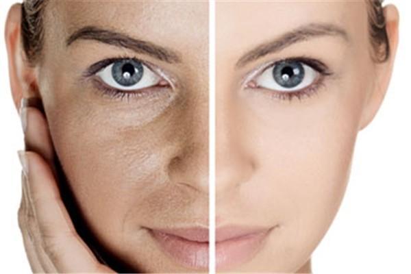 如何有效減少皺紋