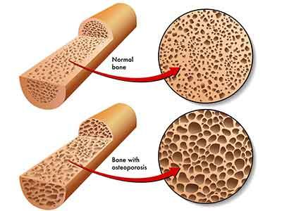 骨質疏鬆要預防