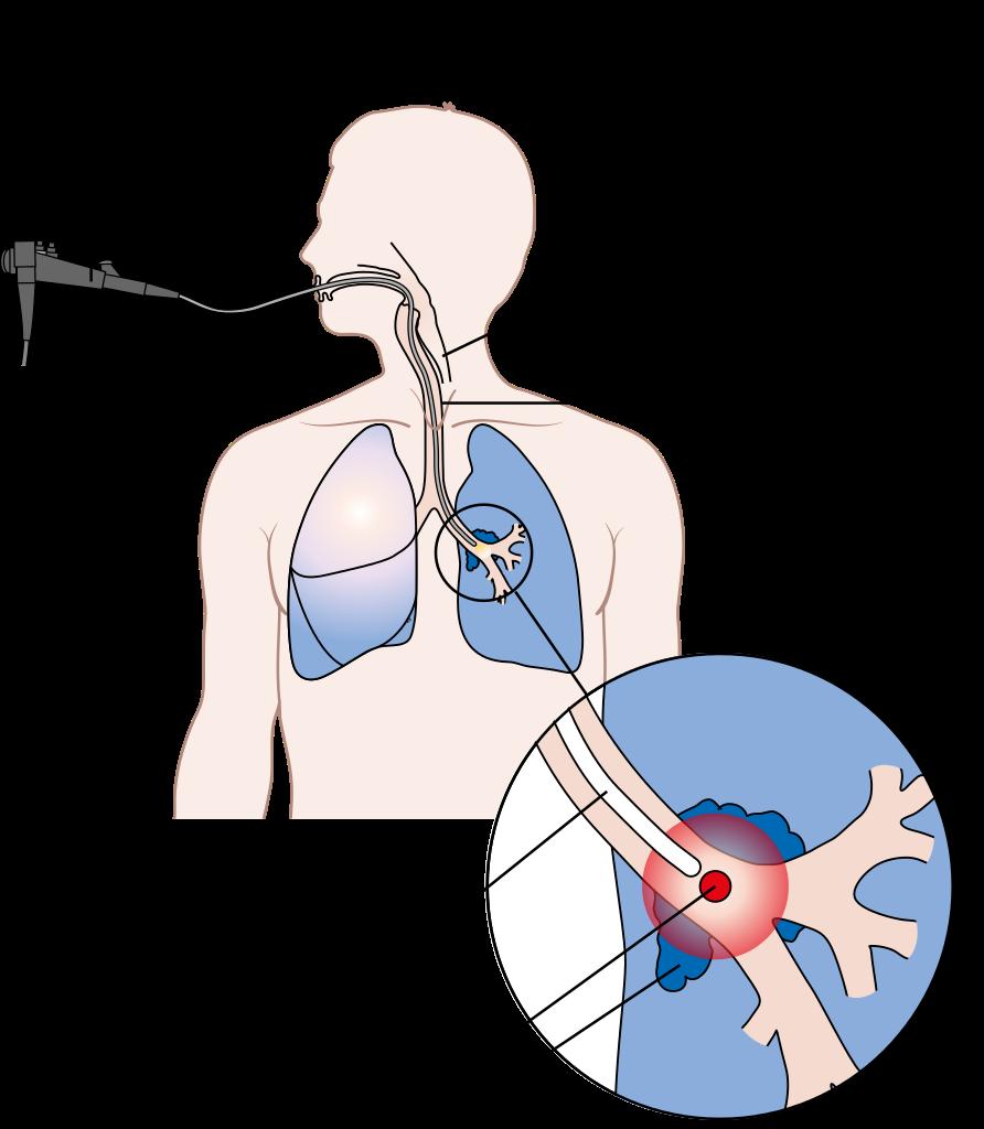 肺臟是人體面積最大的器官
