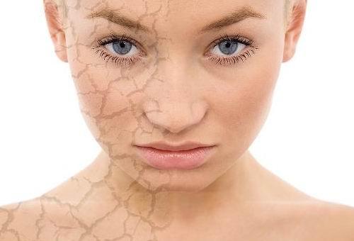 皮膚乾燥防皮膚病