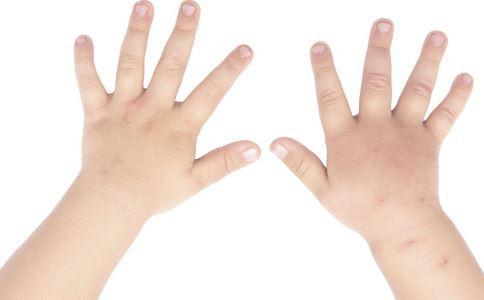 冬季皮膚防脫皮